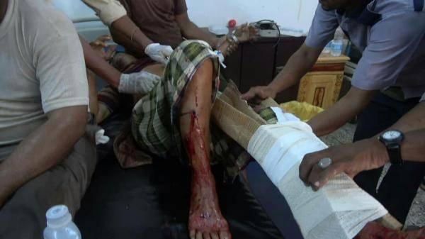 جريمة جديدة للحوثيين.. إصابة 7 عمال بقصف مدفعي على أكبر مجمع صناعي وتجاري في الحديدة