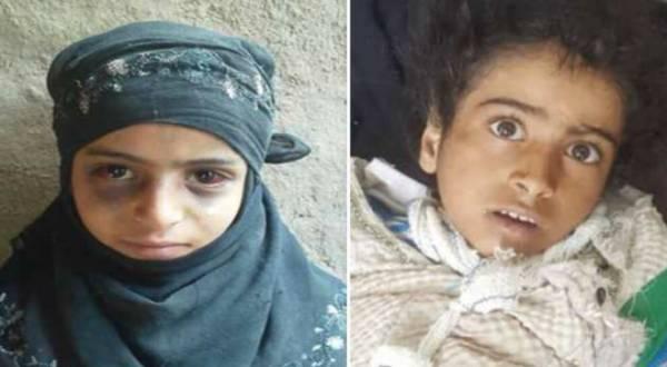 المليشيا تنتصر للقاتل.. محكمة حوثية تفرج عن وحش بشري قتل إبنته وأحرق عين شقيقتها..!؟ - (أسماء وتفاصيل)