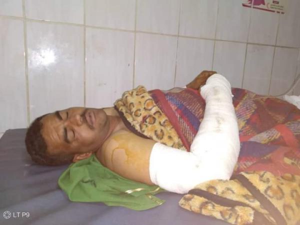 تعز.. إصابة ضابط برصاص أحد مسلحي مليشيا الحشد الشعبي